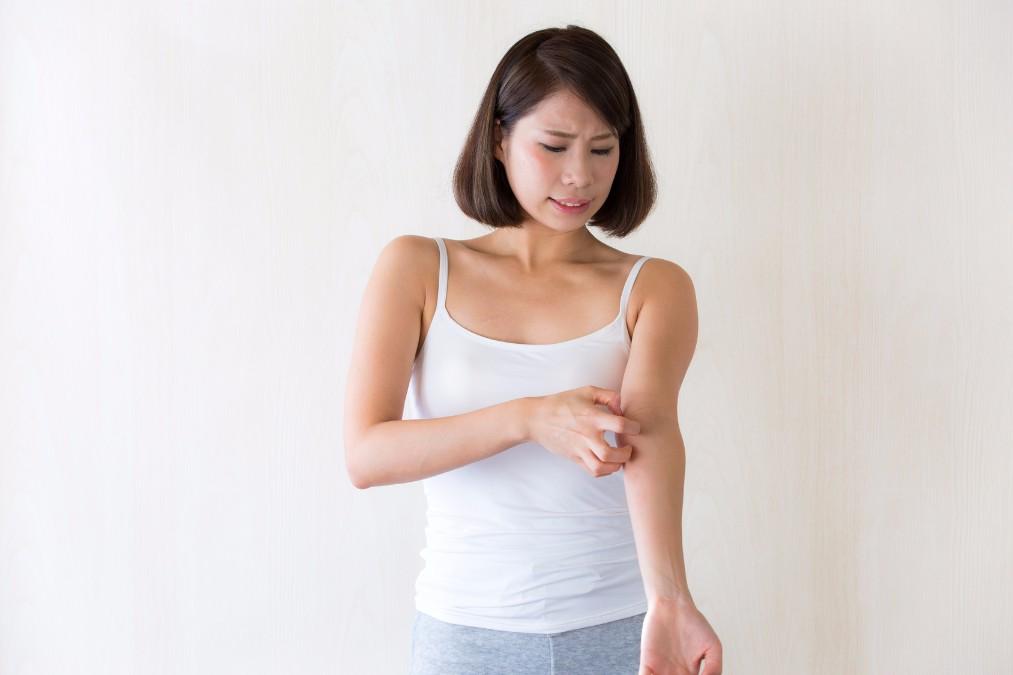 虫刺されで悩む方必見!蚊に刺されやすい5つの原因と予防法