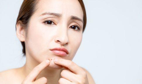 ニキビ肌に最適な洗顔料の選び方